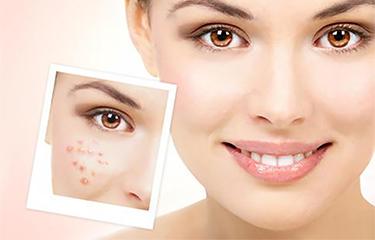 光子嫩肤仪针对哪些肌肤问题有用?维持得长久性的吗?