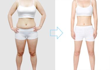 美容院减肥仪器有效吗?减肥过后是否会反弹?