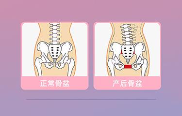 盆底肌修复仪器怎么样?哪些人可以使用它呢